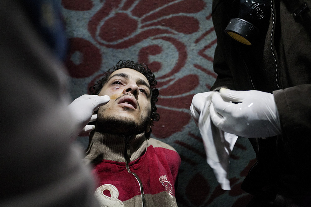 Cairo, Egitto. Un ragazzo ferito durante gli scontri in Piazza Tahrir viene soccorso.